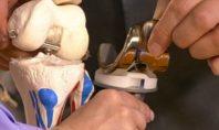 О реабилитации после замены сустава рассказывают врачи «тетюхинского» центра